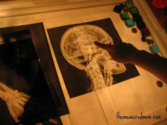 child pointing to brain on X-ray picture